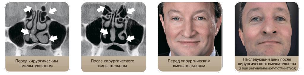 Назальная хирургия, применение ротовых аппликаторов, СИПАП – терапия