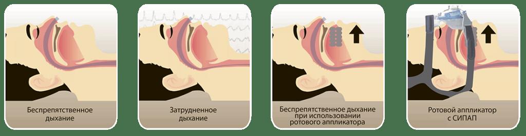 Храп – признак нарушения дыхания во время сна